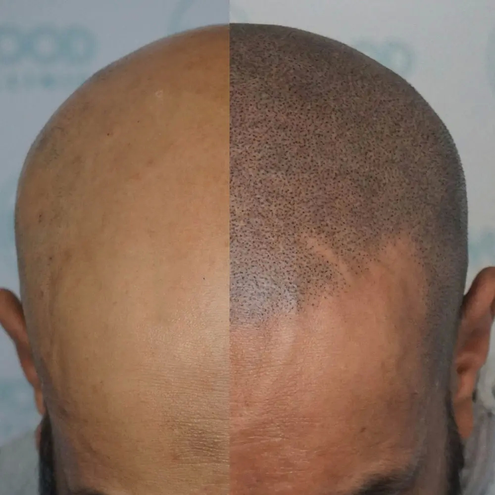 Find out how painful scalp micropigmentation north London