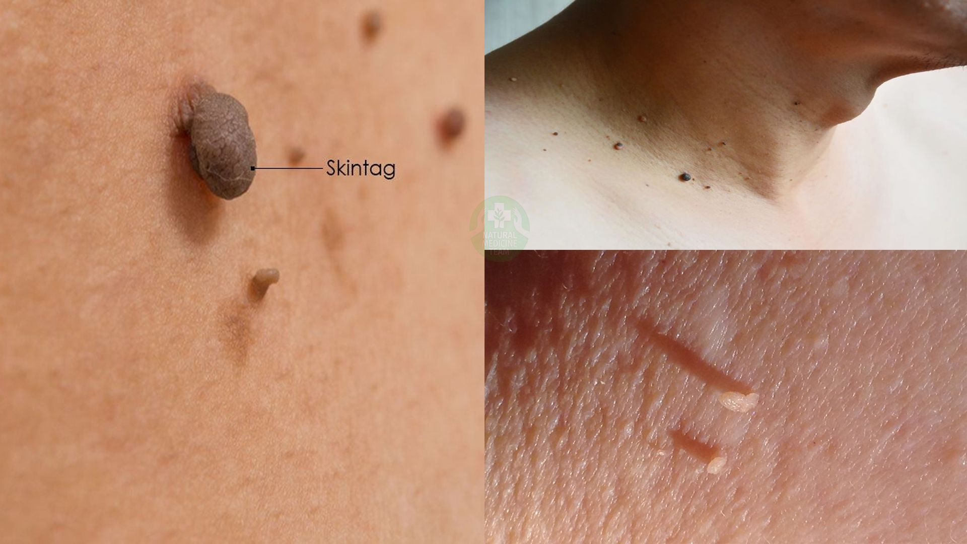 Things you need to know about skin tags