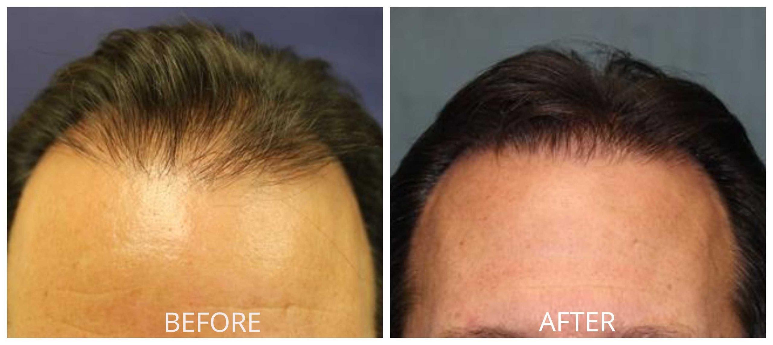 Methods Of Orange County Hair Restoration