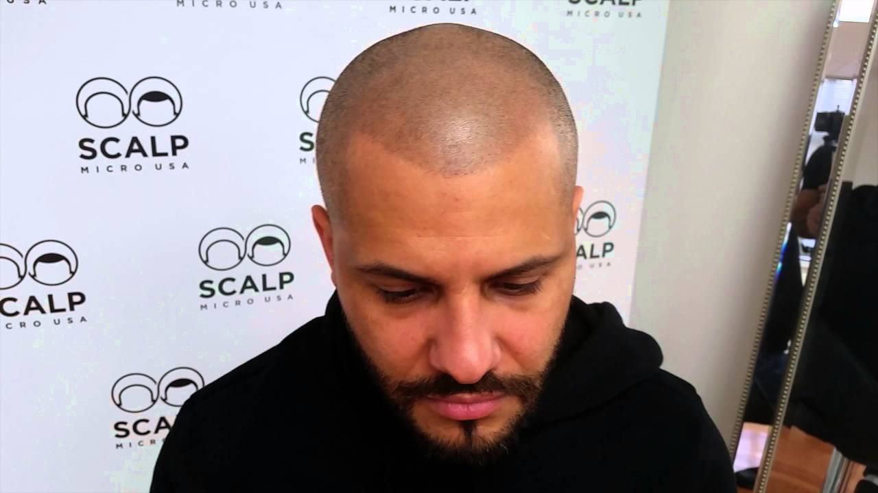 The reason why Scalp micropigmentation done?