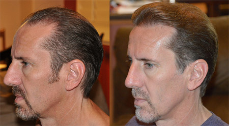 Benefits of hair transplant and restoration treatment in California